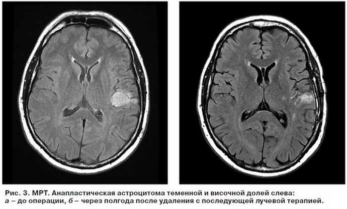астроцитома головного мозга стадии