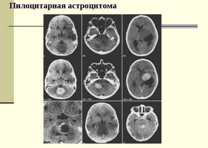 астроцитома головного мозга классификация и виды
