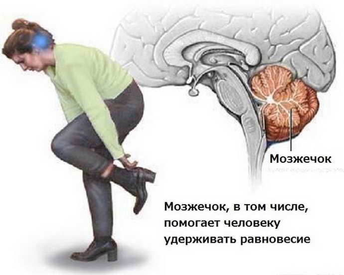 атаксия мозжечковая виды
