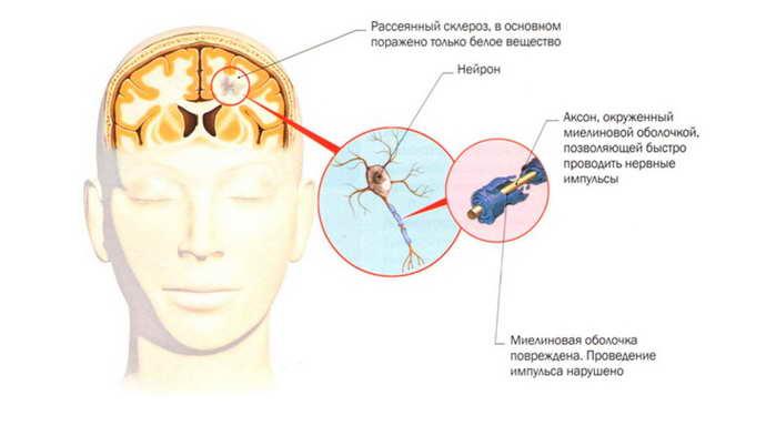рассеянный склероз причины