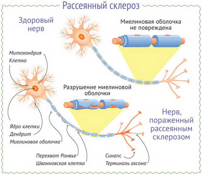 рассеянный склероз как проявляется