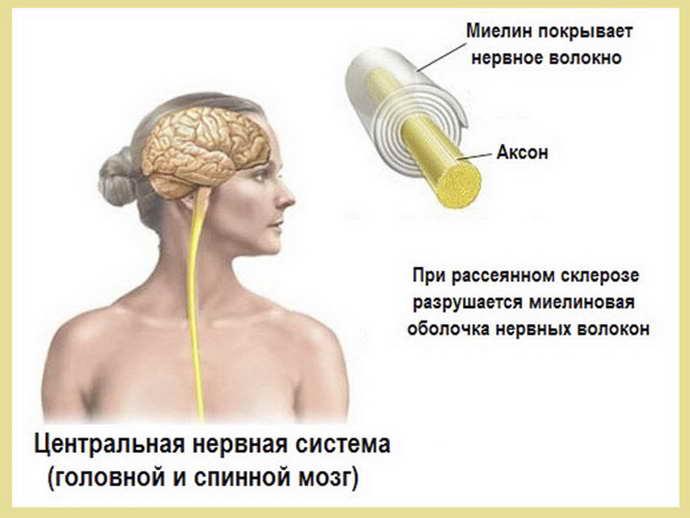 рассеянный склероз почему возникает