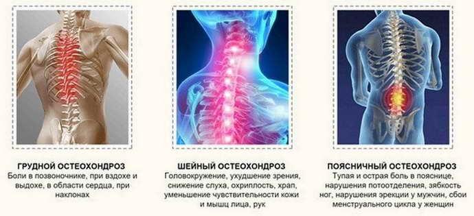 боль в грудине при остеохондрозе виды