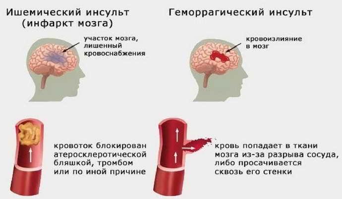 Почему гипотония опаснее при инсульте