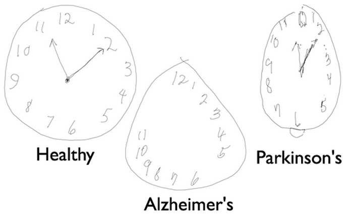 деменция альцгеймеровского типа тесты
