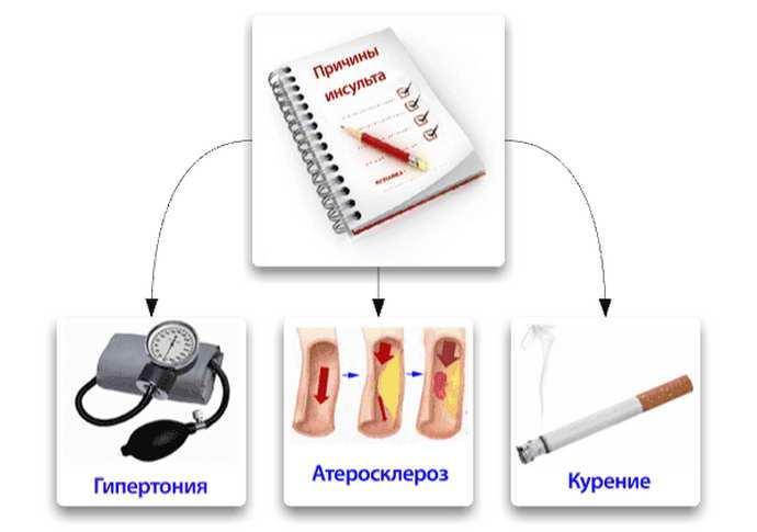 диета после инсульта факторы