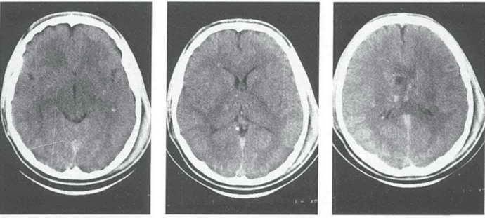 диффузное аксональное повреждение головного мозга диагностика