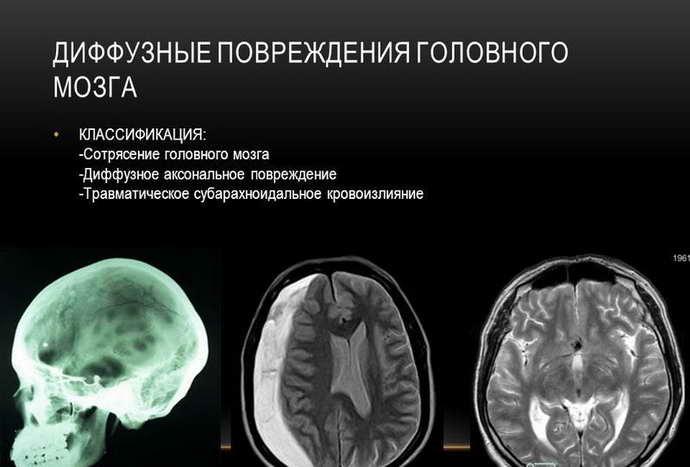 диффузное аксональное повреждение головного мозга виды