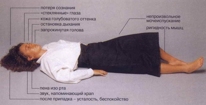 дислокационный синдром опасность