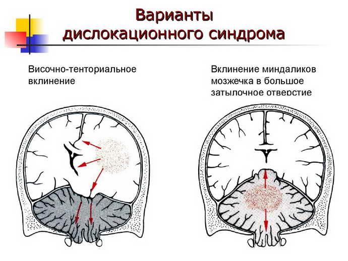 дислокационный синдром формы