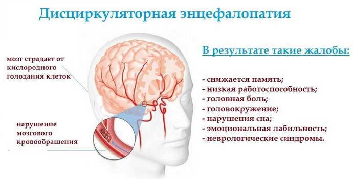 дисциркуляторная энцефалопатия 1 степени причины