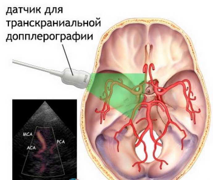 дуплексное сканирование сосудов шеи и головы суть