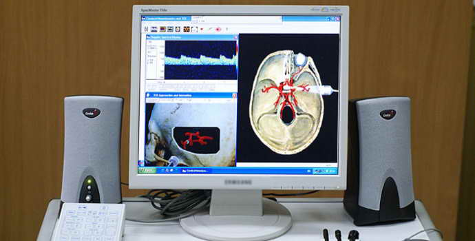 Дуплексное сканирование сосудов головного мозга: инновационный метод диагностики