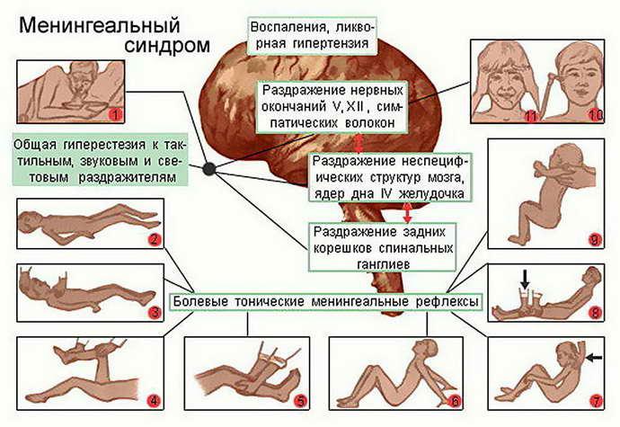 энцефалитный менингит симптоматик
