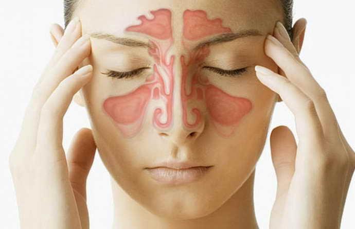 энцефалитный менингит группа риска