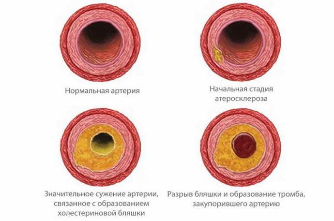 энцефалопатия неуточненная признаки