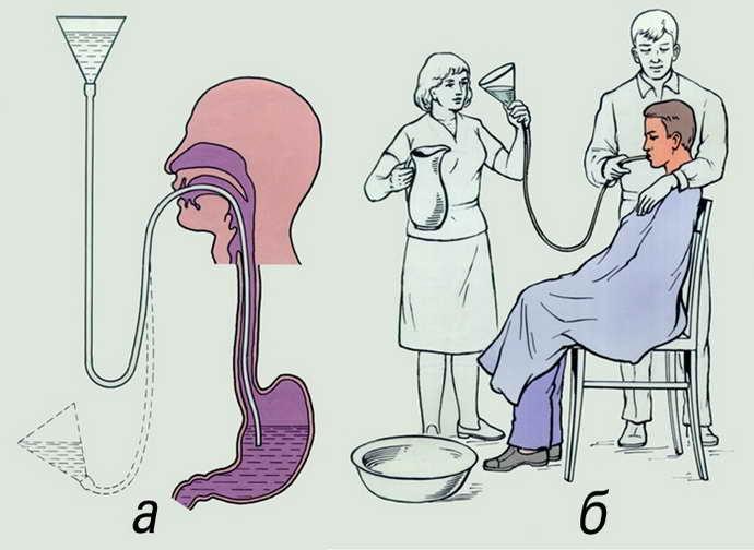 энцефалопатия токсическая лечение