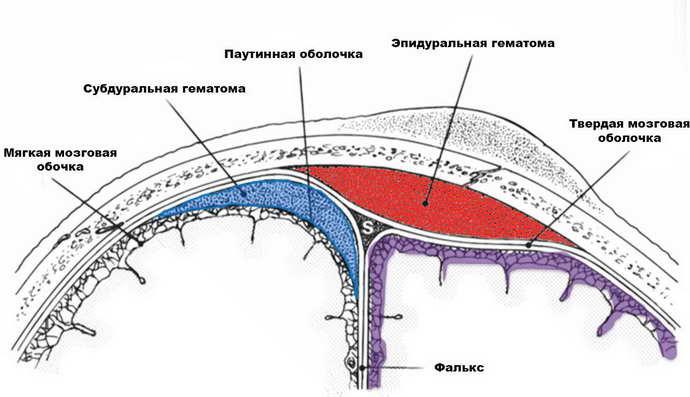 эпидуральная гематома симптоматика