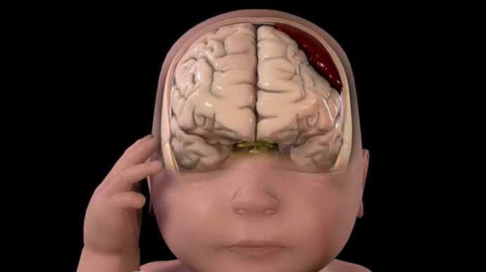 гематома головного мозга что это