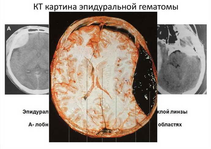 гематома головного мозга признаки
