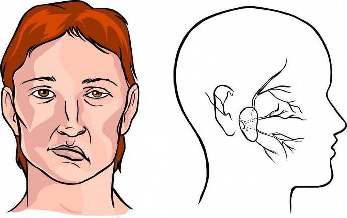 гематома головного мозга симптоматика