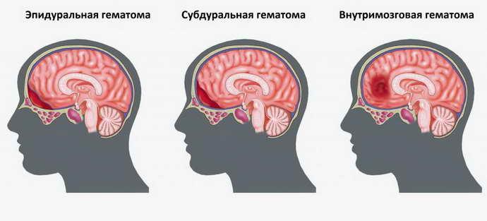 гематома головного мозга виды