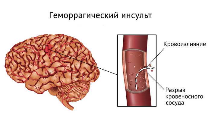 геморрагический инсульт причины