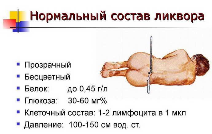 гнойный менингит ликвор