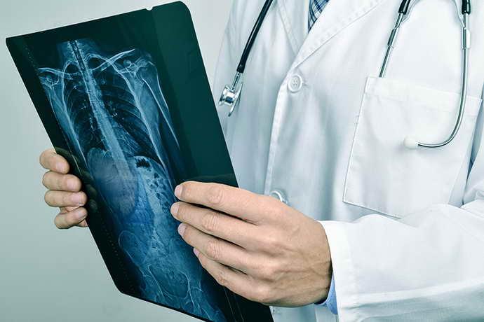 головные боли при остеохондрозе шейного отдела признаки