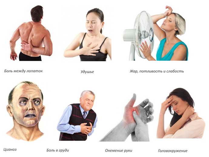 грудной остеохондроз механизм развития