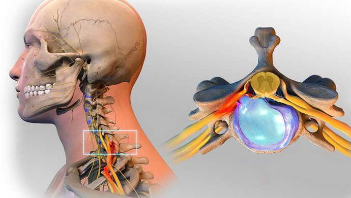 грыжа шейного отдела позвоночника симптомы