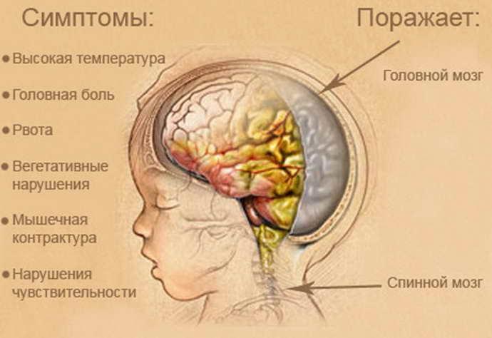 инфекционный менингит симптоматика