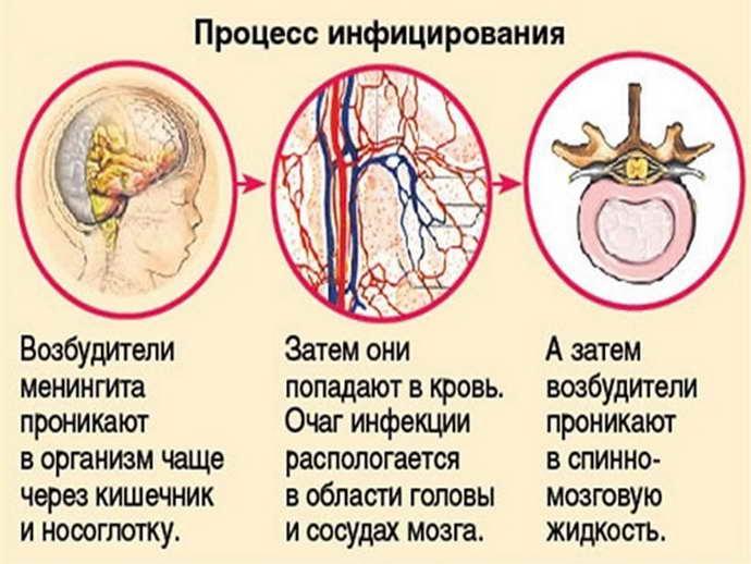 инфекционный менингит причины
