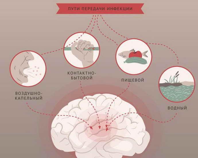 инфекционный менингит причины проявления