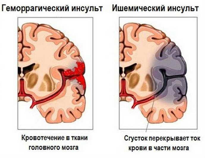 инсульт ишемический и инсульт геморрагический различия
