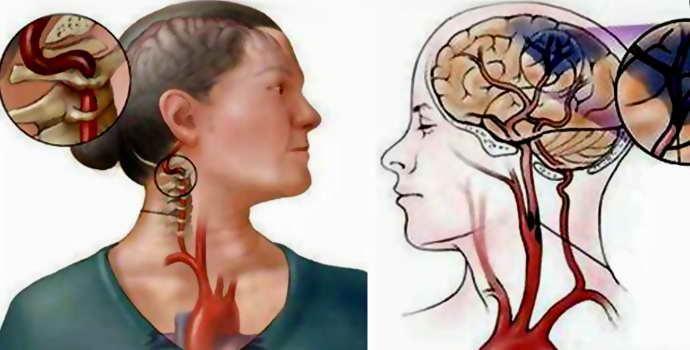 Отличие геморрагического инсульта от ишемического: тонкости патологий