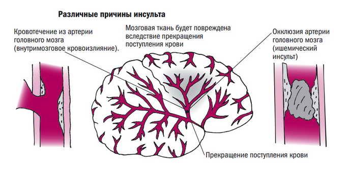 инсульт симптомы приичны
