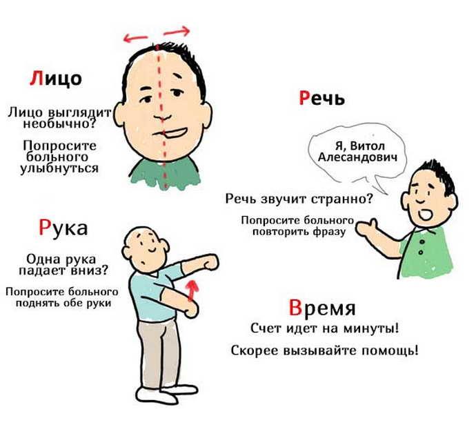 ишемический инсульт симптомы