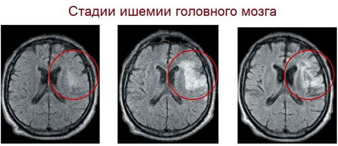 ишемия головного мозга у новорожденного стадии