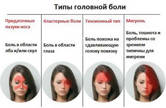 мигрень у женщин виды