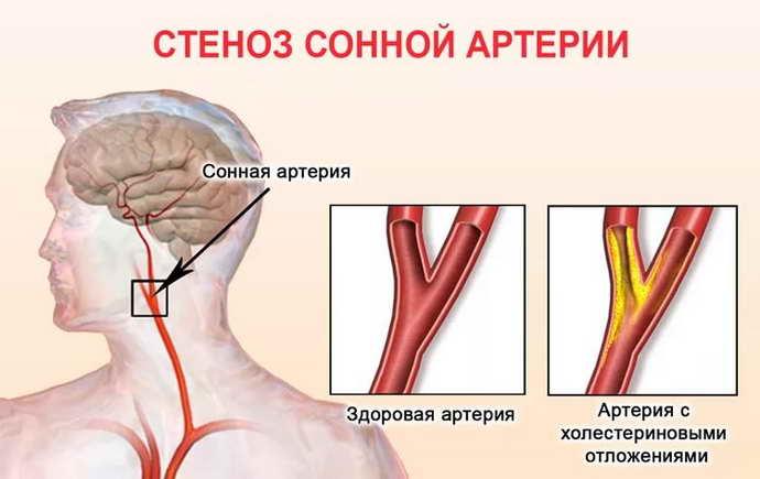 Что такое сужение кровеносных сосудов