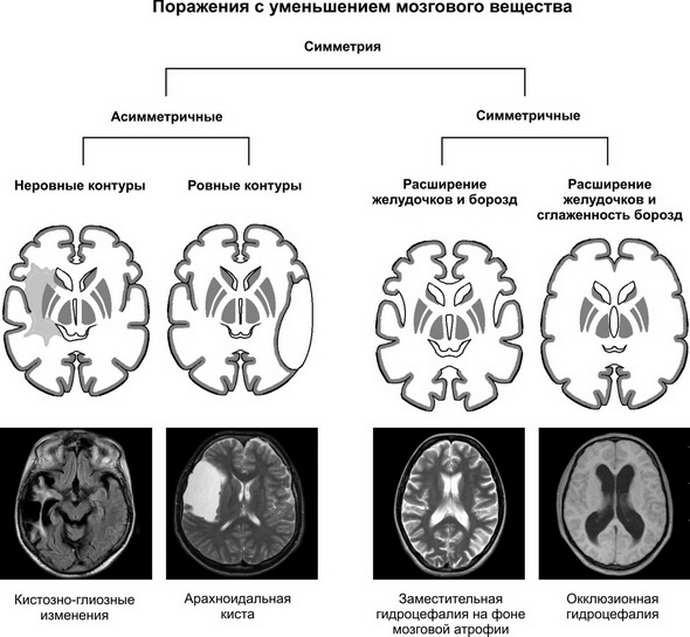 кистозно глиозные изменения головного мозга разновидности