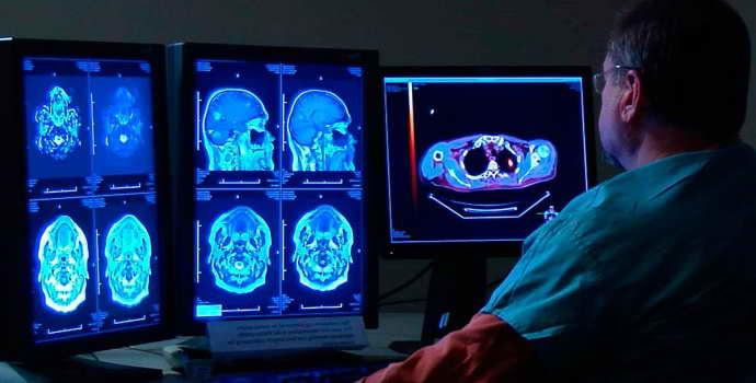 Лакунарная киста головного мозга: причины, симптомы, лечение