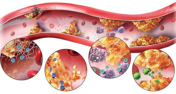 лечение атеросклероза сосудов головного мозга что выбрать