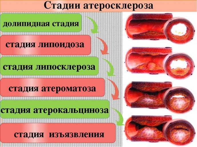 лечение атеросклероза сосудов головного мозга стадии