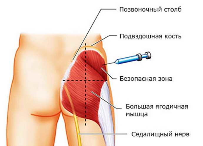лечение седалищного нерва как делают