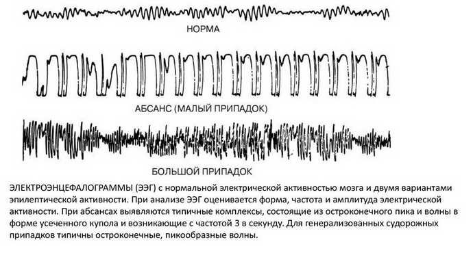 легкие диффузные изменения биоэлектрической активности головного мозга прогноз