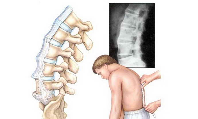 плюсы массажа шейного отдела позвоночника при остеохондрозе