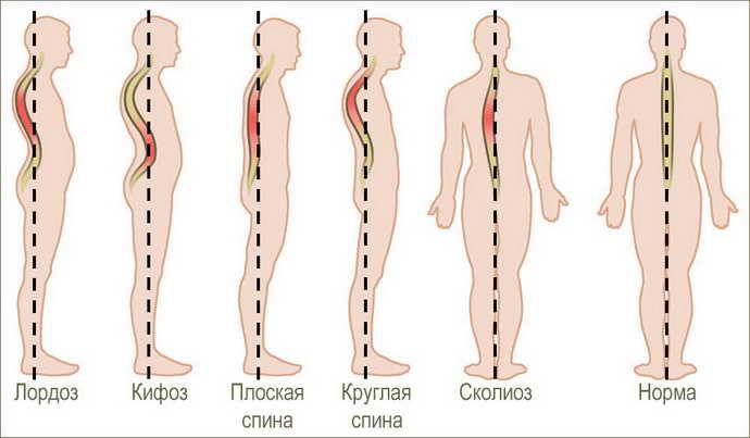 стадии остеохондроза шейного отдела позвоночника