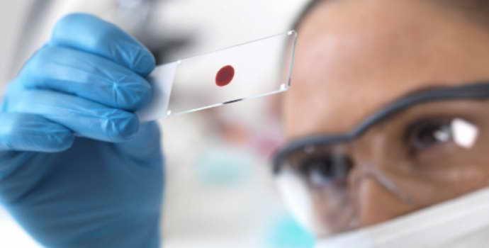 Менингококковый менингит: особенности протекания и лечения болезни